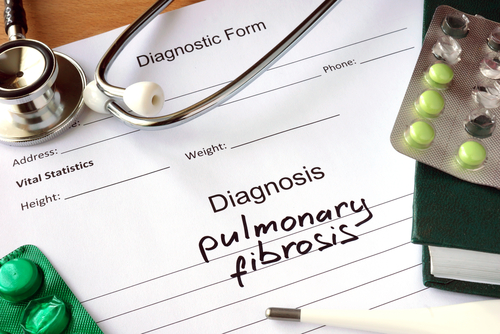 Diagnostic form with Diagnosis pulmonary fibrosis and pills