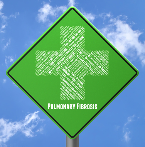 How to Cope with your Pulmonary Fibrosis Diagnosis