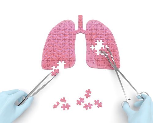 puzzle piece lung operation