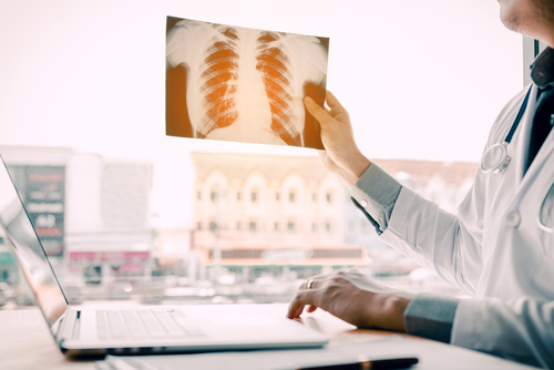 Qualifying for a Lung Transplant—Everything You Need to Know