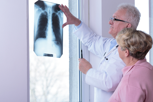 Physician looking at radiograph
