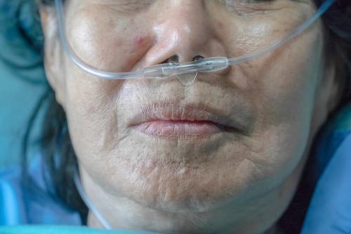 Elderly woman with nasal breathing tube